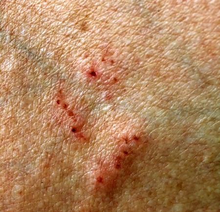 Cuts and scratches on the skin. Wounds and abrasions. Stock Photo