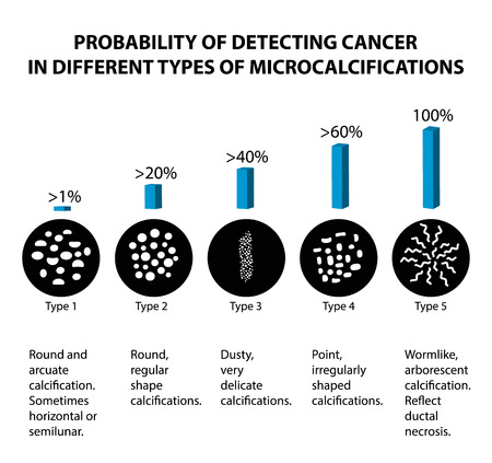 The probability of detecting breast cancer with different types of microcalcinates. Mammography. Infographics. Vector illustration on isolated background.
