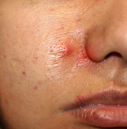 Inflammation on the skin of the face. Red pimples purulent. Acne. Keloid scars. Expanded pores.