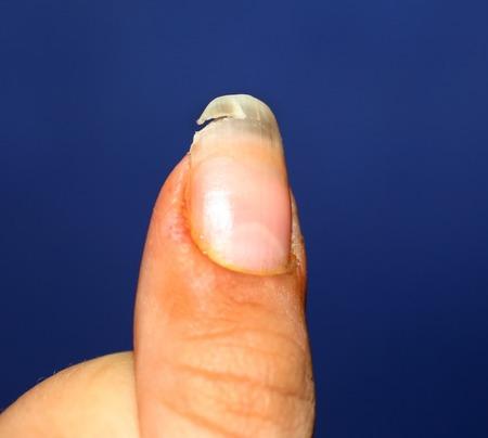 Een gebroken nagel. Gebrek aan vitaminen en calcium in het lichaam