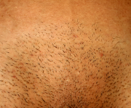 Picture of a shaved groin