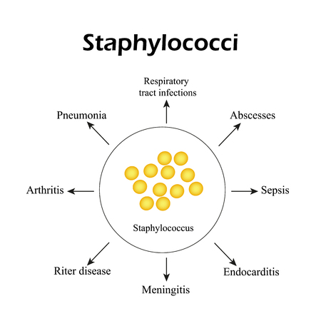 Staphylococci. Staphylococcus aureus causes diseases. Infographics Vector illustration