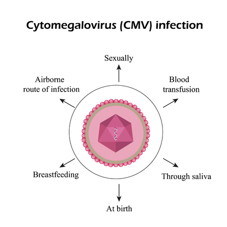 Cytomegalovirus. Diseases caused by cytomegalovirus. Infographics Vector illustration