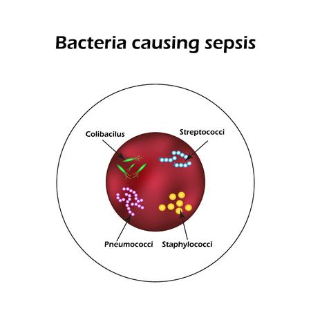 Sepsis. Blood poisoning. E. coli. Streptococci Pneumococci Staphylococci Infographics Vector illustration Ilustrace