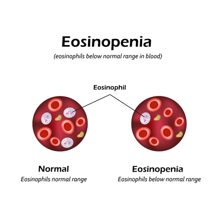 Eosinophils below normal range  in blood. Eosinopenia. Infographics. Vector illustration. Illustration
