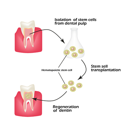 Stem cells from the dentin of the tooth is used to regenerate diseased tooth dentin. Infographics. Vector illustration.