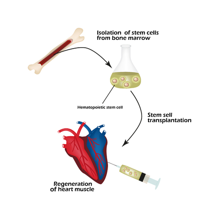 Stem cells from bone marrow is used to regenerate the cardiac muscle. Infographics. Vector illustration. Çizim