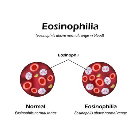 Eosinophils above normal range in blood. Eosinophilia. Infographics. Vector illustration. Stock Vector - 88047155