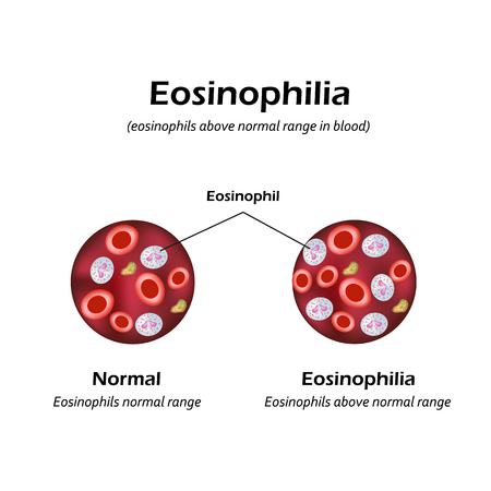 Eosinophils above normal range in blood. Eosinophilia. Infographics. Vector illustration.