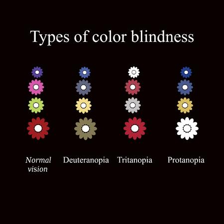 색맹의 유형. 눈 색깔 인식. 검정색 배경에 벡터 일러스트 레이 션.