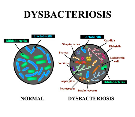 Dysbacteriosis of the intestine. Lactobacillus, Bifidobacteria, Streptococcus, Staphylococcus, E. coli, Aspergyllus mushrooms, Candida Infographics Vector illustration on isolated background.