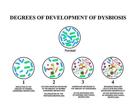 4 stopnie rozwoju dysbiozy. Dysbakterioza jelita. Jelito grube. dysbioza okrężnicy. Bakterie, grzyby, wirusy. Infografiki. Ilustracja wektorowa na białym tle.