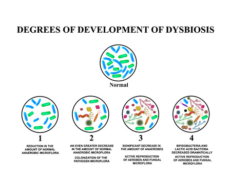 4 degrees of development of dysbiosis. Dysbacteriosis of the intestine. The large intestine. dysbiosis of colon. Bacteria, fungi, viruses. Infographics. Vector illustration on isolated background.