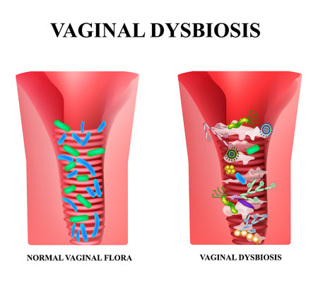 Vaginale dysbiose. Dysbacteriose van de vagina. Vaginitis. Candidiasis. Lactobacillus, bifidobacteriën. Bacteriën pathogene flora. Infographics. Vectorillustratie op geïsoleerde achtergrond