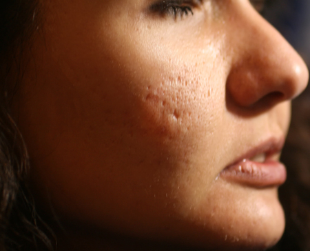 Inflamed skin of the face in pimples and acne. Keloid scars from acne.