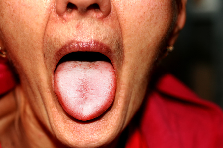 The tongue is in a white raid. Candidiasis in the tongue. Archivio Fotografico