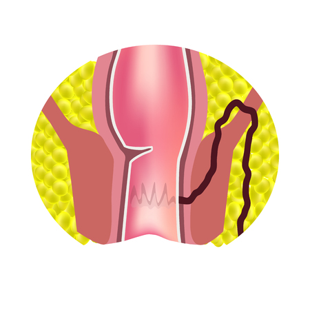 Types of fistulas of the rectum, paraproctitis, anus. Abscess of the rectum, infographics vector illustration on isolated background.