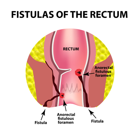 Types of fistulas of the rectum. Paraproctitis. Anus. Abscess of the rectum. Infographics. Vector illustration on isolated background. Illustration
