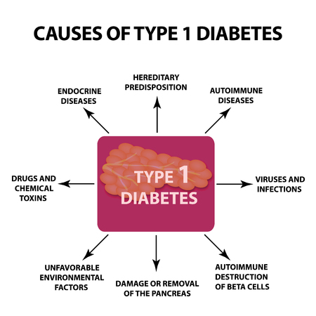 The causes of Diabetes Type 1, Infographics illustration on isolated background. 向量圖像