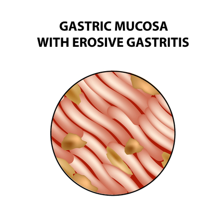 Mucous stomach with erosive gastritis. Infographics. Vector illustration on isolated background. Stock Vector - 96959243