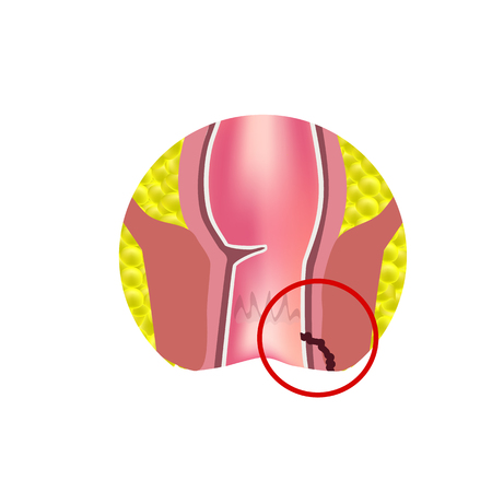 Types of fistulas of the rectum. Paraproctitis. Anus. Abscess of the rectum. Infographics. Vector illustration on isolated background. Illusztráció