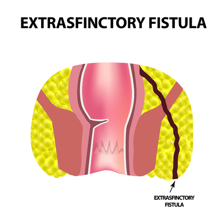 Types of fistulas of the rectum. Paraproctitis. Anus. Abscess of the rectum. Infographics. Vector illustration on isolated background. 일러스트