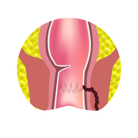 Types of fistulas of the rectum. Paraproctitis. Anus. Abscess of the rectum. Infographics. Vector illustration on isolated background. Ilustrace