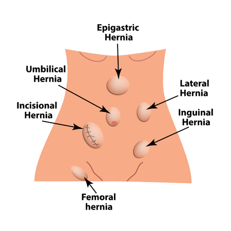 Types of hernia. Epigastric, Lateral, Umbilical, Inguinal, femoral, incisional hernia. intestinal hernia Infographics Vector illustration on isolated background Vectores