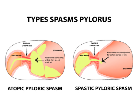 Types of spasms of the pylorus, pylorospasm, spastic and atonic. Pyloric sphincter of the stomach. Infographic vector image on isolated background. Illustration