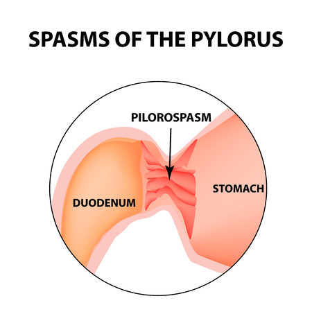Spasms of the pylorus. Spastic pyloric sphincter of the stomach. Infographics vector image on isolated background.