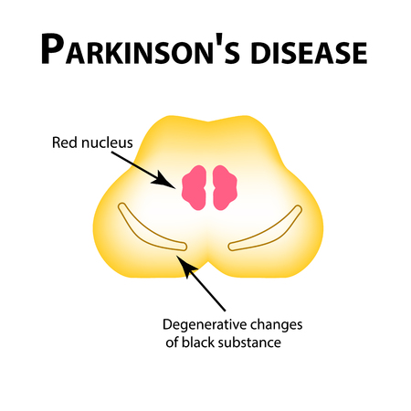 Parkinsons disease, degenerative changes in the brain are a black substance, vector illustration on isolated background. Illustration