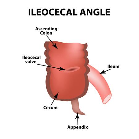 Ileocecal angle. Ileocecal valve. Bauginiev s damper. The ileum, the Cecum, the Apendix. Colon. Infographics. Vector illustration on isolated background