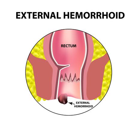 Hemorrhoids external. Rectum structure. Intestines. colon. Internal hemorrhoidal node. Infographics. Vector illustration on isolated background