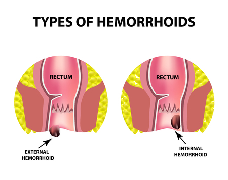 Two types of hemorrhoids are external and internal. Rectum structure, intestines. colon. Internal and external hemorrhoidal node infographics vector illustration on isolated background.