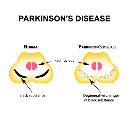 Parkinson's disease, degenerative changes in the brain are a black substance vector illustration on isolated background.