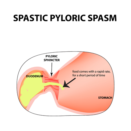 Spasms Of The Pylorus. Spastic Pyloric Sphincter Of The Stomach ...