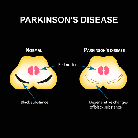 Parkinsons disease. Degenerative changes in the brain are a black substance. Vector illustration on black background