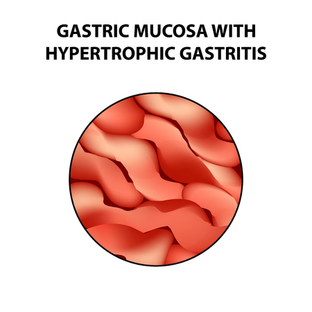 Gastric mucosa with hypertrophic gastritis. Infographics. Vector illustration on isolated background.