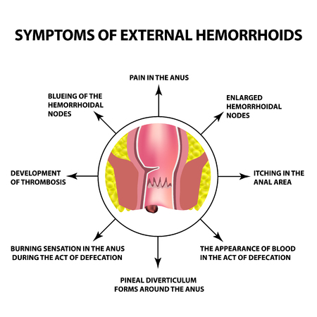 Symptoms of external hemorrhoids. The hemorrhoidal node in the rectum, anus. Infographics. Vector illustration on isolated background