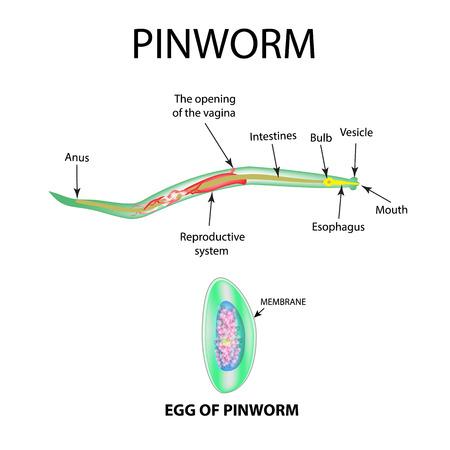 Pinworms-structuur van een volwassene. De structuur van het pinworm-ei. Set. Infographics. Vectorillustratie op geïsoleerde achtergrond