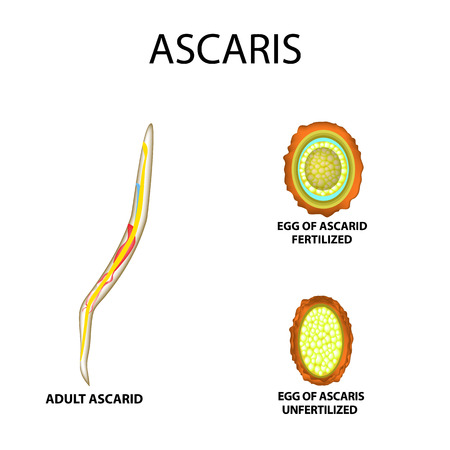 Ascaris the structure of an adult. Fertilized and unfertilized egg. The structure of the egg ascarids. Set. Infographics. Vector illustration on isolated background Illustration