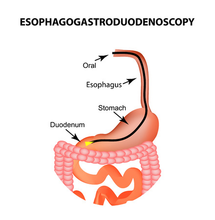 Esophagogastroduodenoscopy. Upper endoscopy. Fibrogastroscopy. Diagnosis of esophageal, stomach, duodenum, intestine colon InfographicsVector illustration on isolated background