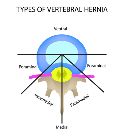 Types of location of the intervertebral hernia. Vector illustration on isolated background