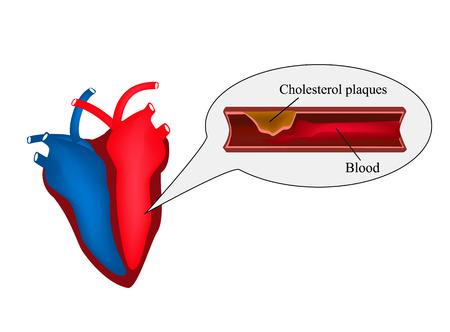 Atherosclerosis of the heart. angina pectoris. Heart disease. World Heart Day. Vector illustration on isolated background