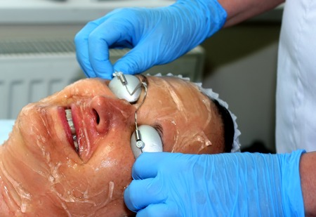 Girl on the cosmetic procedure. Face cleaning. Fractional rejuvenation. Botox. Laser resurfacing. elos lifting