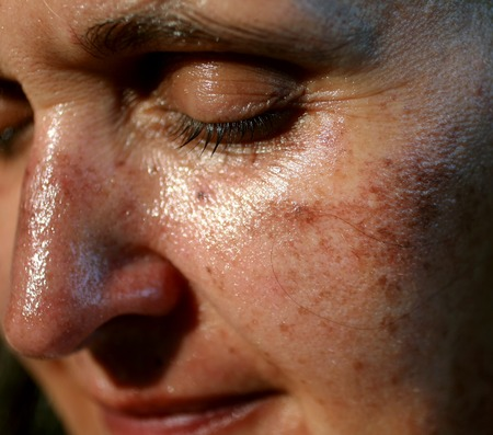 Pigmented spots on the face. Pigmentation on cheeks. Stock Photo - 110525190