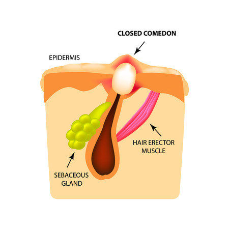 Closed comedones. white heads acne. The structure of the skin. Infographics. Vector illustration on isolated background.
