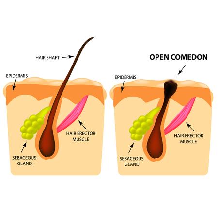 Comedoni aperti. acne testa nera. La struttura della pelle. Infografiche. Illustrazione vettoriale su sfondo isolato