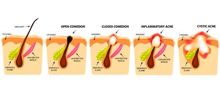 Tipi di acne. Comedoni aperti, comedoni chiusi, acne infiammatoria, acne cistica. La struttura della pelle. Infografiche. Illustrazione vettoriale su sfondo isolato
