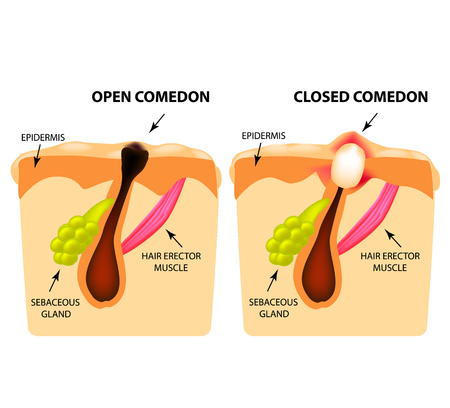Types of acne. Open comedones, closed comedones, Skin structure. Infographics. Vector illustration on isolated background.